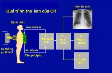 CR là gì ? Cơ bản về hệ thống X quang kỹ thuật số CR
