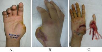 Việt Nam thực hiện thành công phẫu thuật siêu khó tầm cỡ quốc tế: lấy ngón CHÂN cái thay cho ngón TAY cái để phục hồi chức năng bàn tay!