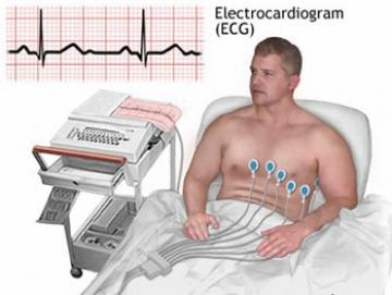 Máy điện tim - Tổng quan về máy điện tim